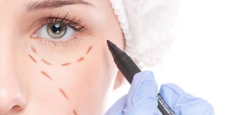 Cirurgia Oculoplástica