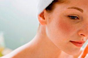 Melasma: Causas, Sintomas e Tratamentos