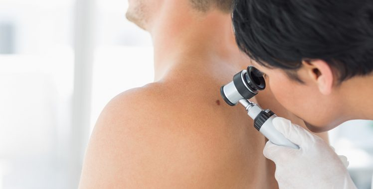 Câncer de Pele: Causas, Sintomas e Tratamentos