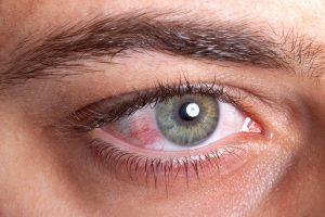 Fique atento às alergias oculares