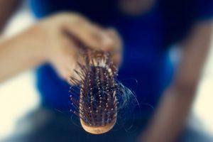 Descubra quando a queda de cabelo é preocupante