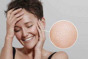 Mitos e verdades sobre a pele oleosa