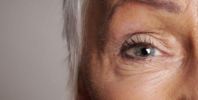 Saiba o que é catarata: sintomas, tratamentos e causas