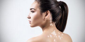 Vitiligo: o que é, sintomas e como tratar