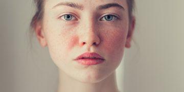 Rosácea: saiba o que é a doença e como prevenir