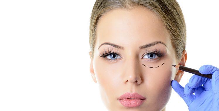 Cirurgia Oculoplástica melhora a expressão do olhar