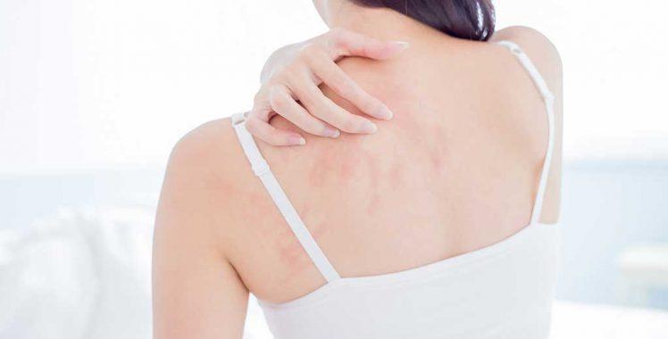 Alergias na Pele: o que são, sintomas, tipos, prevenção e tratamentos